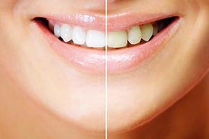 Før og etter tannbleking