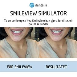 SmileView
